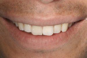 fogehér